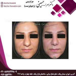 جراحی بینی های گوشتی