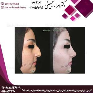 جراحی در بینی های کج