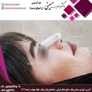 چسب زدن بینی
