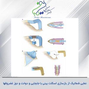 مواد اصلی کاربردی در جراحی زیبایی بینی