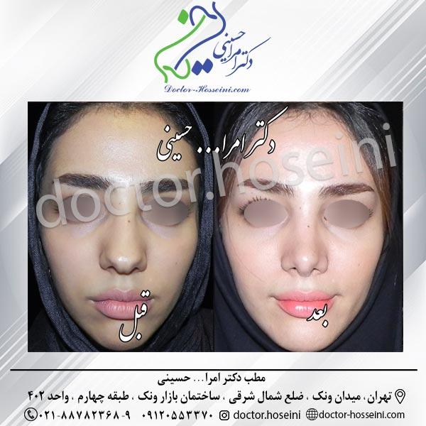 پوست-های-ضخیم-و-جراحی-زیبایی-بینی-5