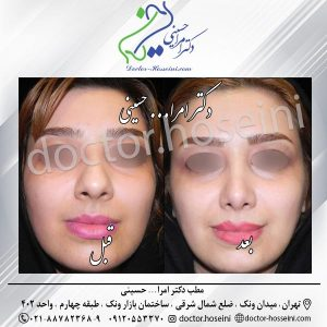 پوست های ضخیم و جراحی زیبایی بینی
