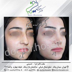 پوست های نازک و جراحی زیبایی بینی