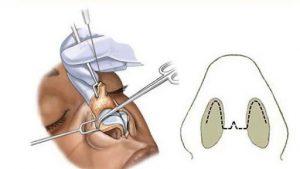 جراحی زیبایی بینی ، روش باز یا روش بسته