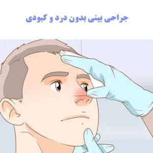 شب بعد از عمل بینی