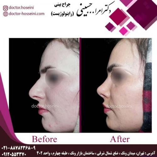 جراحی بینی 201