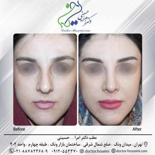 جراحی بینی 216