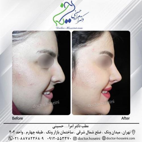 جراحی بینی 219