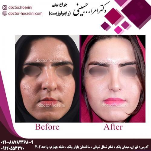 جراحی بینی 79