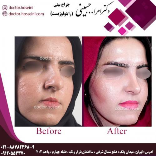 جراحی بینی 80