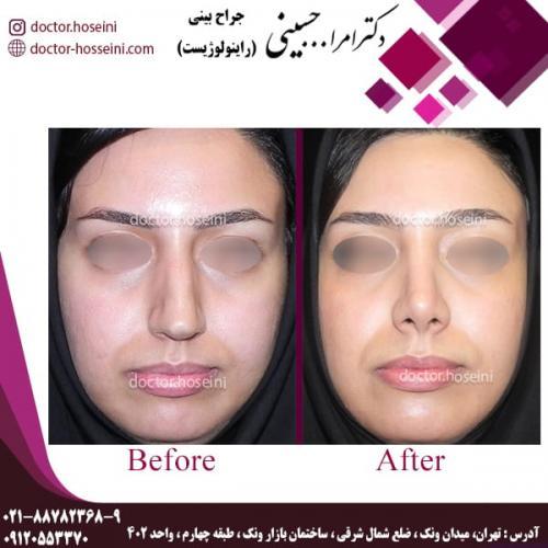 جراحی بینی 82