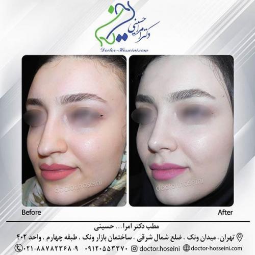 جراحی-بینی-2-313 (1)