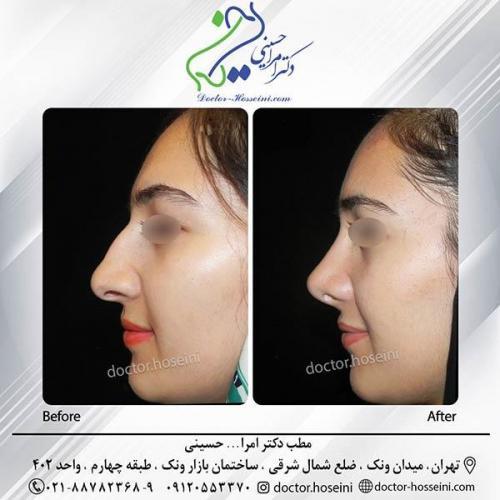 جراحی-بینی-3-312
