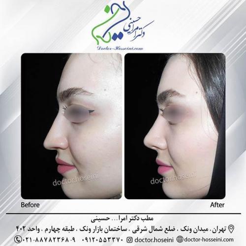 جراحی-بینی-3-313