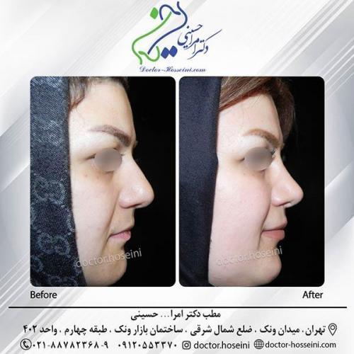 جراحی-بینی-3-315