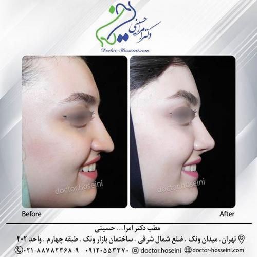 جراحی-بینی-4-313