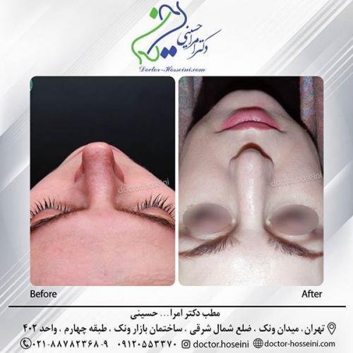 جراحی-بینی-6-316