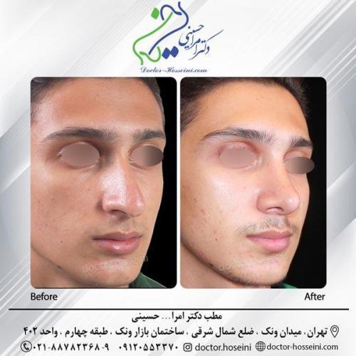 جراحی بینی 256
