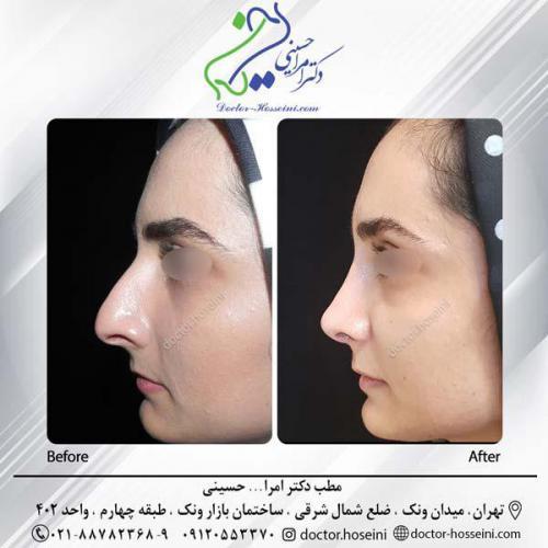 جراحی بینی 282