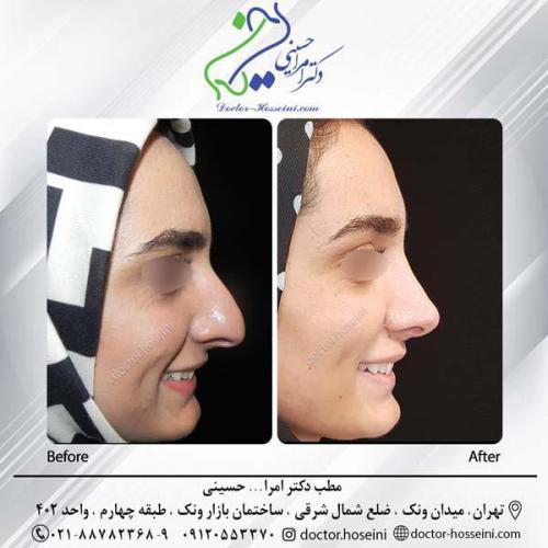 جراحی بینی 285