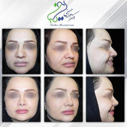 جراحی بینی 290