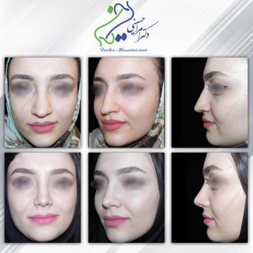 جراحی بینی 293