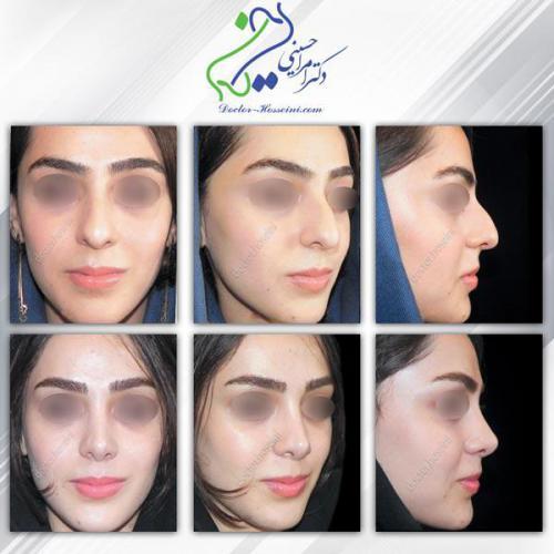 جراحی بینی 295